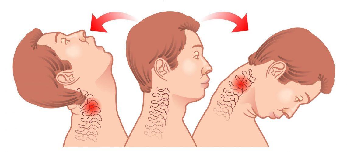 diagram of whiplash injury
